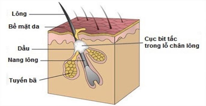 Mụn là 1 dạng rối loạn tuyến bã nhờn, xuất phát từ lớp biểu bì da