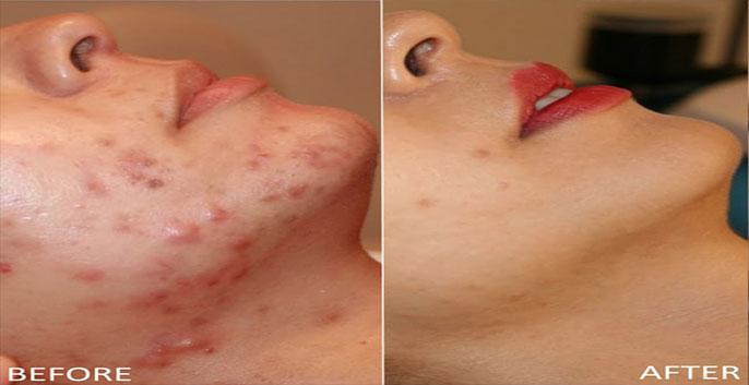 Công nghệ omega light này phù hợp cho tất cả các loại da