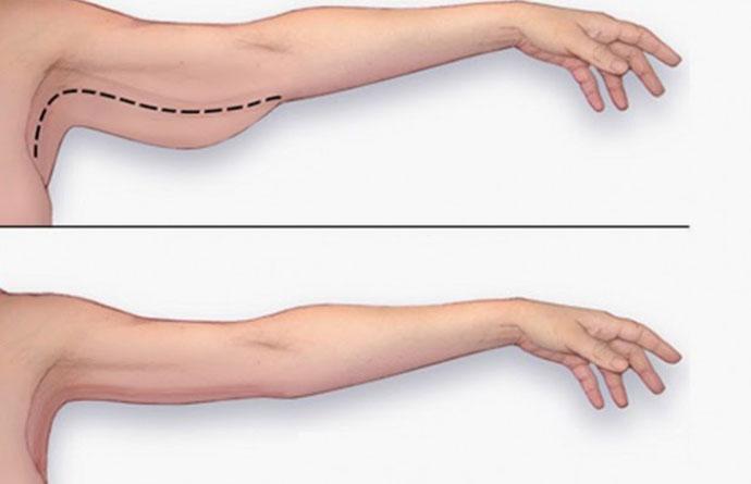 Tiêm giảm bắp tay với công nghệ FUSION MESO (TIÊM) Tại TPHCM