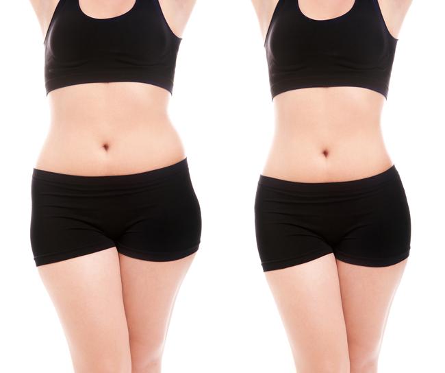 Tiêm giảm mỡ bụng bằng công nghệ FUSION MESO (TIÊM) tại TPHCM