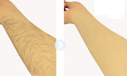 Triệt lông tay bằng công nghệ IPL Hàn Quốc tại TPHCM
