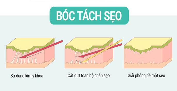 Bóc tách đáy sẹo hay còn gọi Subcision (còn được gọi là bóc tách vi điểm, bóc tách đa điểm)