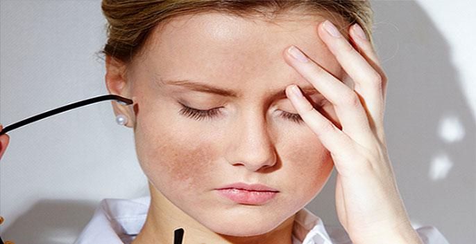 Nám da là hiện tượng bề mặt da xuất hiện các đốm màu nâu sẫm không đều màu và kích thước không đồng nhất
