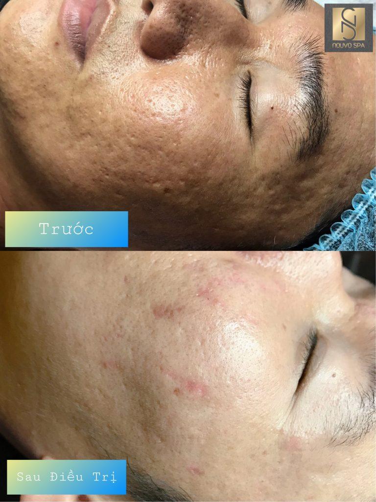 Trước và sau khi điều trị sẹo tại Nouvo SPA