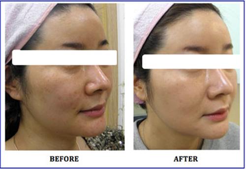 Kết quả của liệu trình căng da bóng và trẻ hoá da tại Nouvo SPA