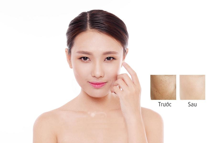 Meso Fill Korea – cấy nano sợi collagen căng da, trắng da tại TPHCM