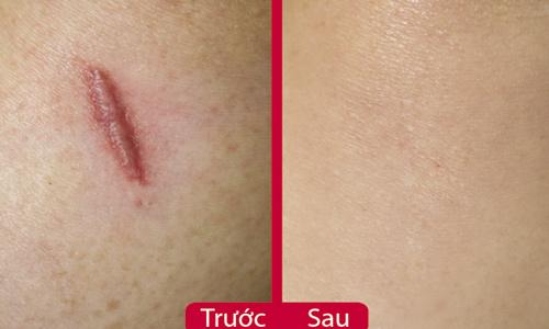 Kết quả điều trị seo lội trước và sau