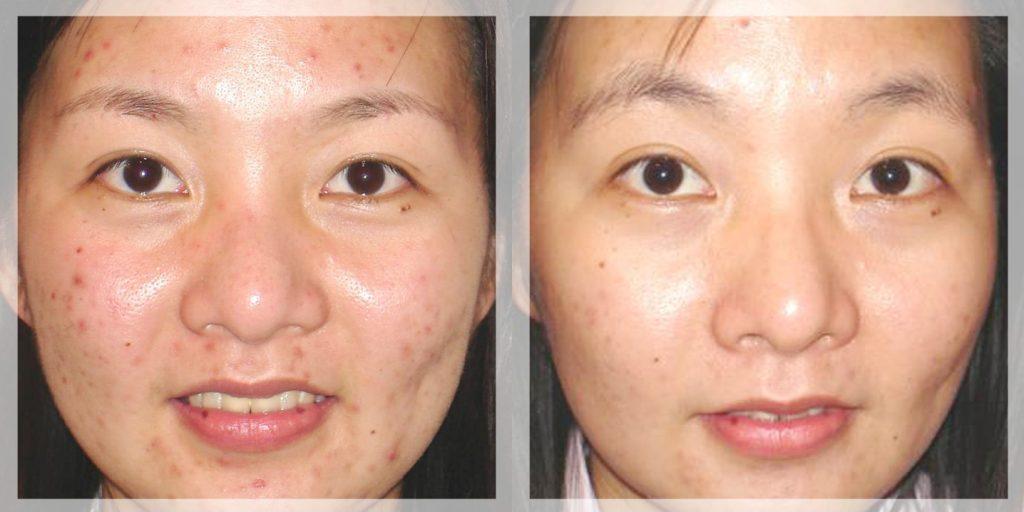kết quả trước và sau khi điều trị sẹo thâm