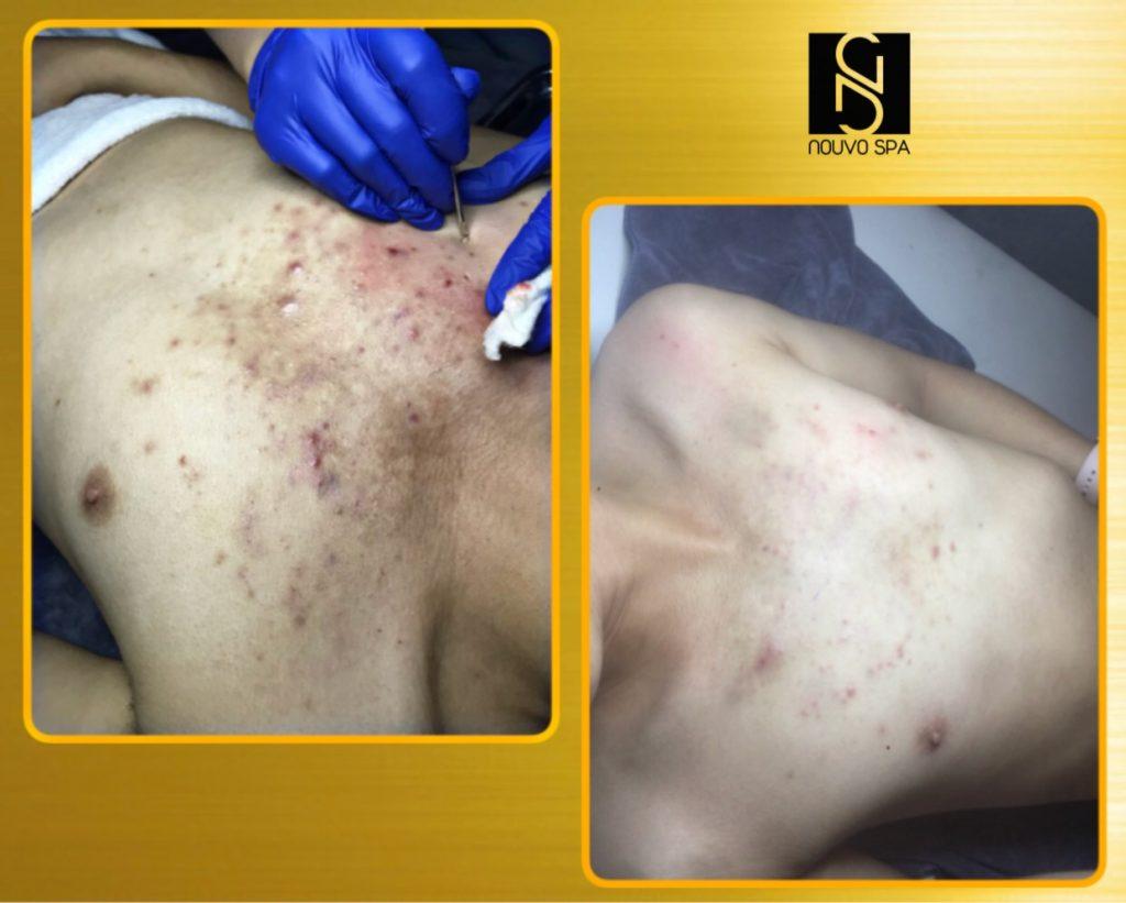 Kết quả trước và sau khi trị mụn ngực tại Nouvo SPA