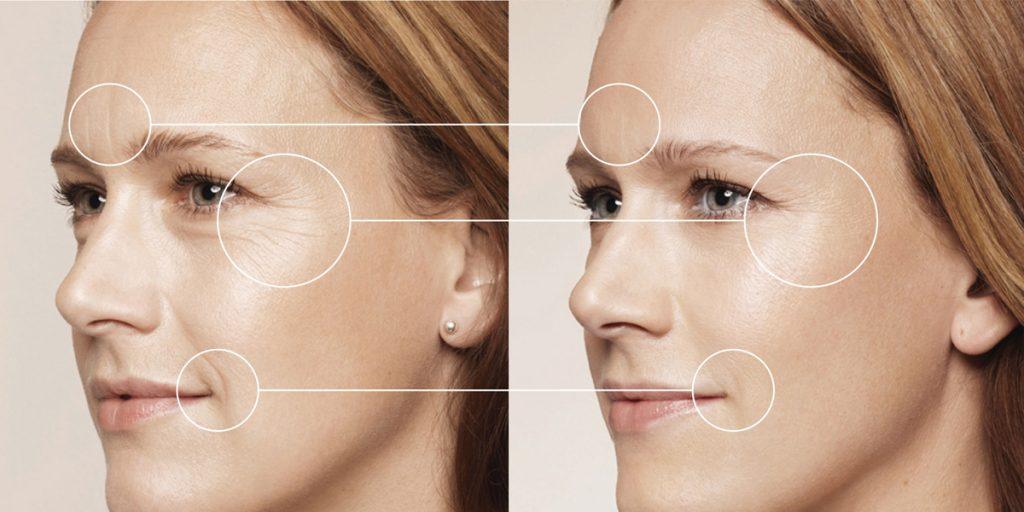 Xoá nhăn - căng mịn da với công nghệ tiêm FUSION MESO
