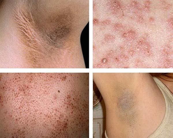 Những hậu quả có thể xảy đến khi triệt lông không đúng cách