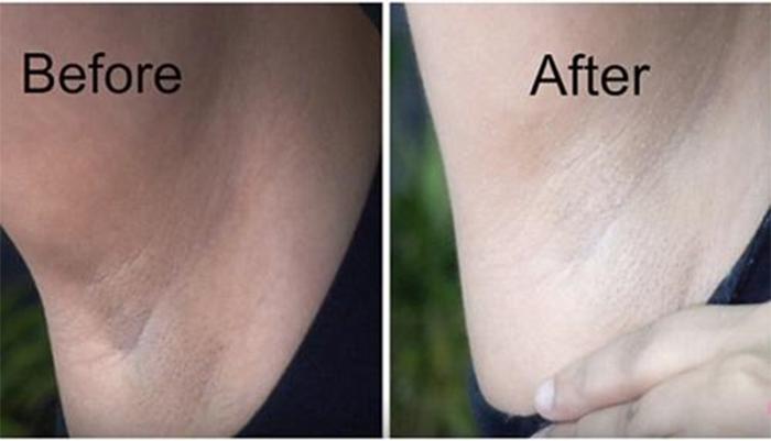 Trước và sau khi điều trị thâm nách