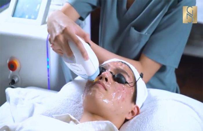 Quá trình điều trị mụn bằng công nghệ CO2 Therapy