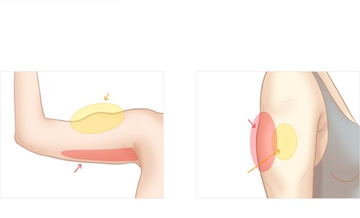 Phương pháp giảm mỡ bắp tay theo công nghệ FUSION MESO