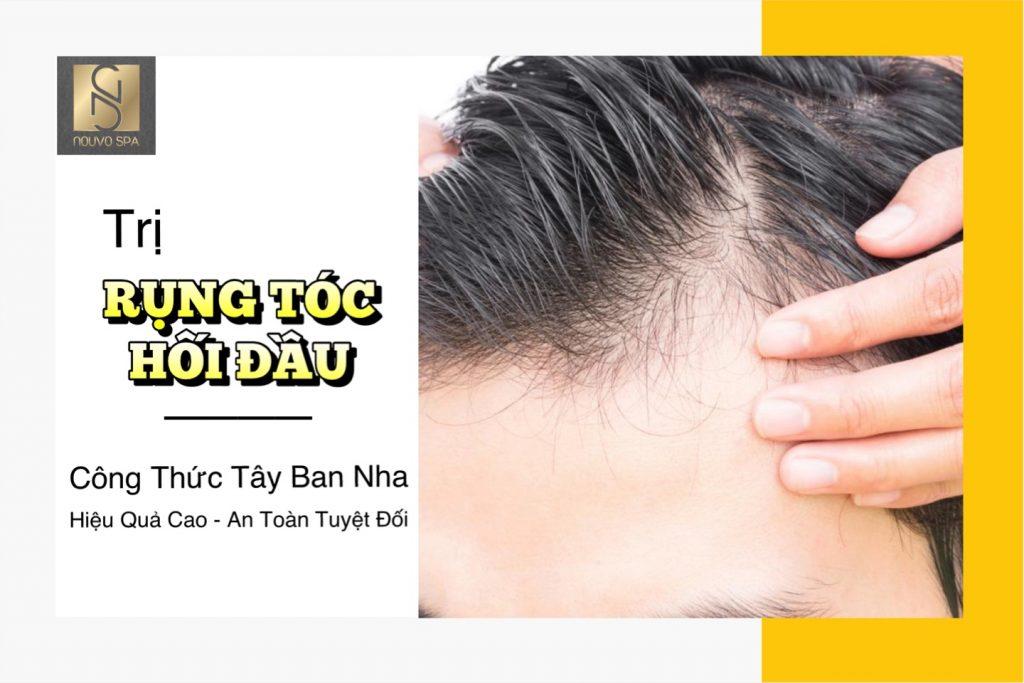 Điều trị rụng tóc - Hói đầu bằng công thức Tây Ban Nha