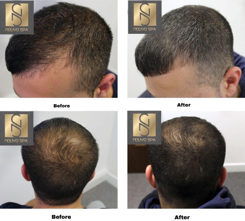 Trước và sau khi tiêm trị rụng tóc